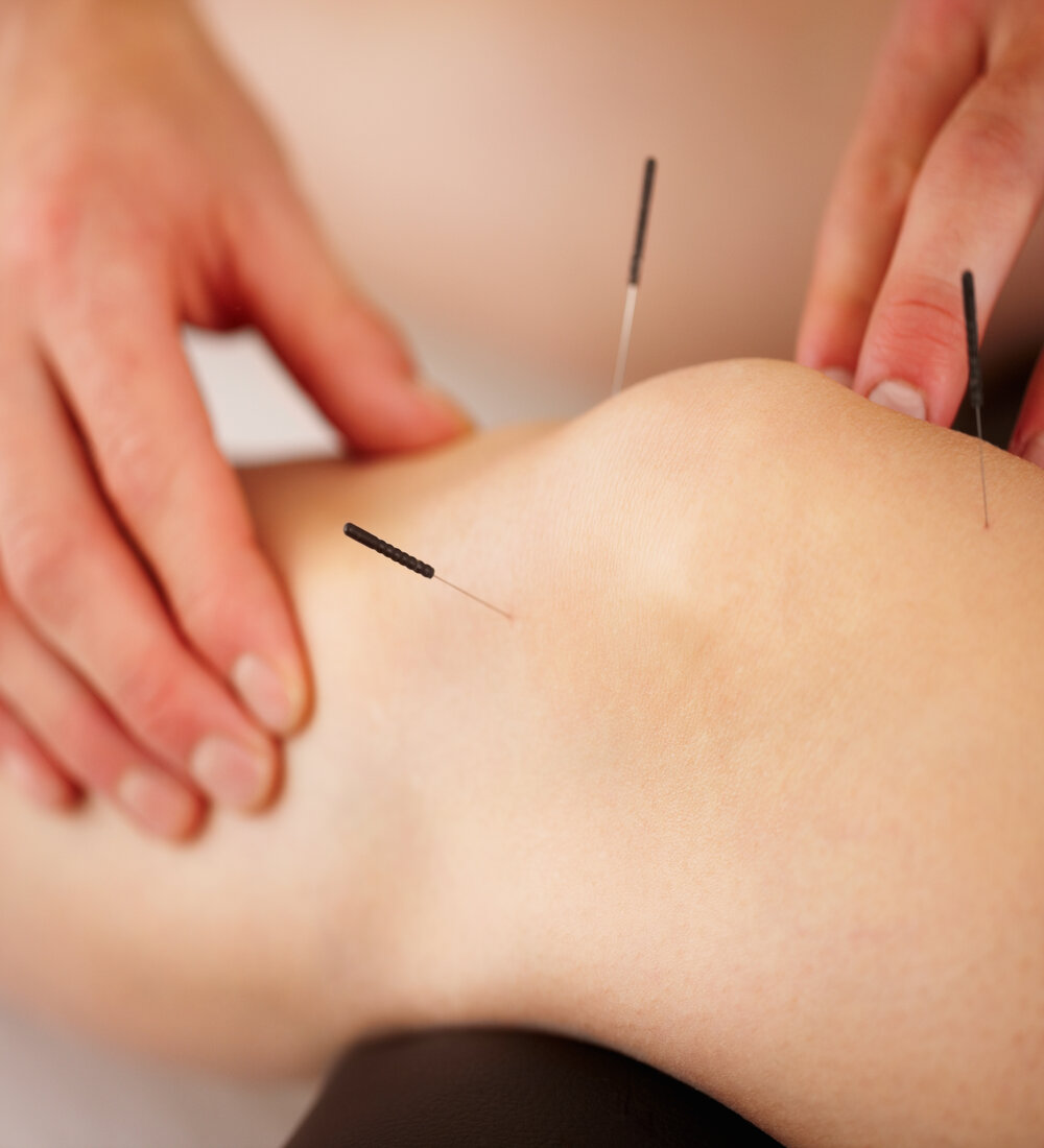 Acupuncture & Dry Needling